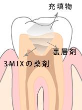 3Mix-MP法(なるべく歯を削らない治療)