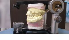 BBO Splintのサンプル写真